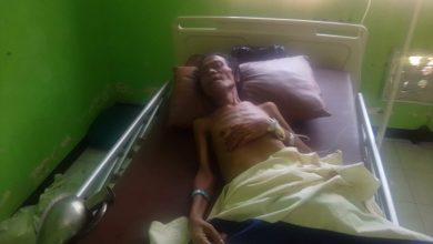 Photo of Idap Tumor Ganas, Bimo Sebatang Kara Butuh Uluran Tangan