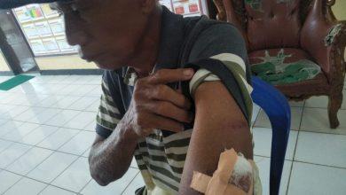 Photo of Kesal Ditegur, Pelaku Aniaya Korban Dengan Dodos Sawit